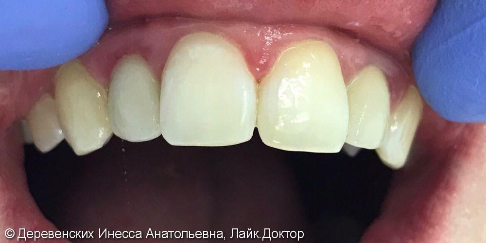 Фронтальная реставрация зуба 11, нанокомпозит Filtek z550 - фото №2
