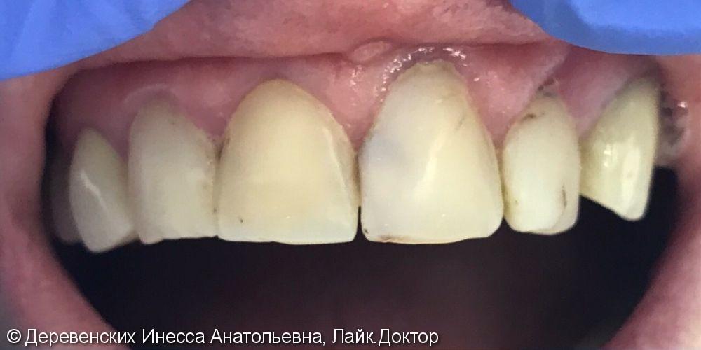 Реставрация четырех передних зубов, материалы Filtek z550, Filtek z250 3M, USA - фото №1