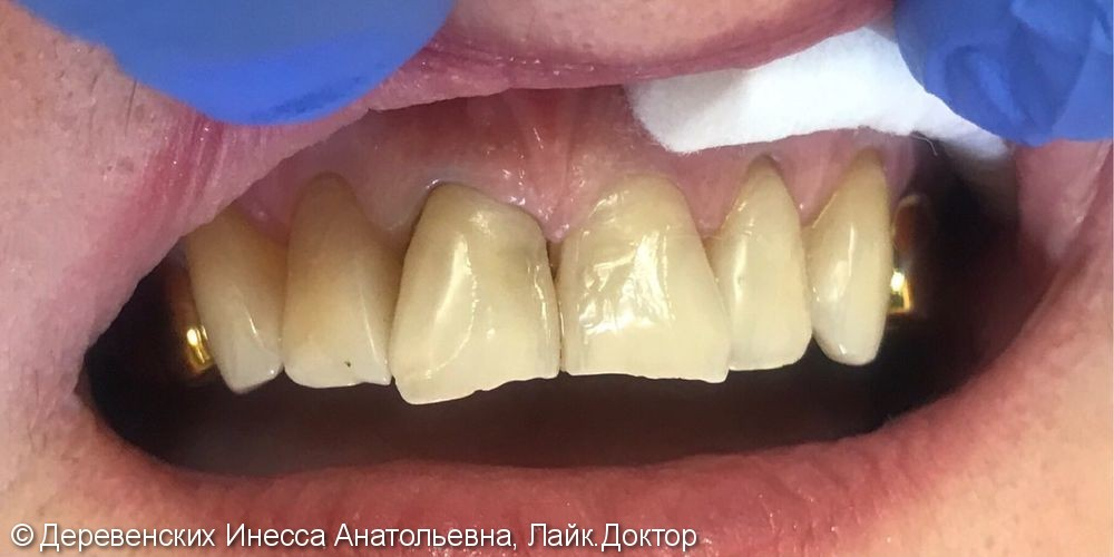 Эстетические реставрации зубов, материалы Filtekz550, Filtekz250 - фото №1