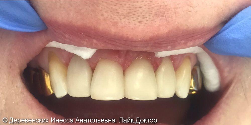 Эстетические реставрации зубов, материалы Filtekz550, Filtekz250 - фото №2
