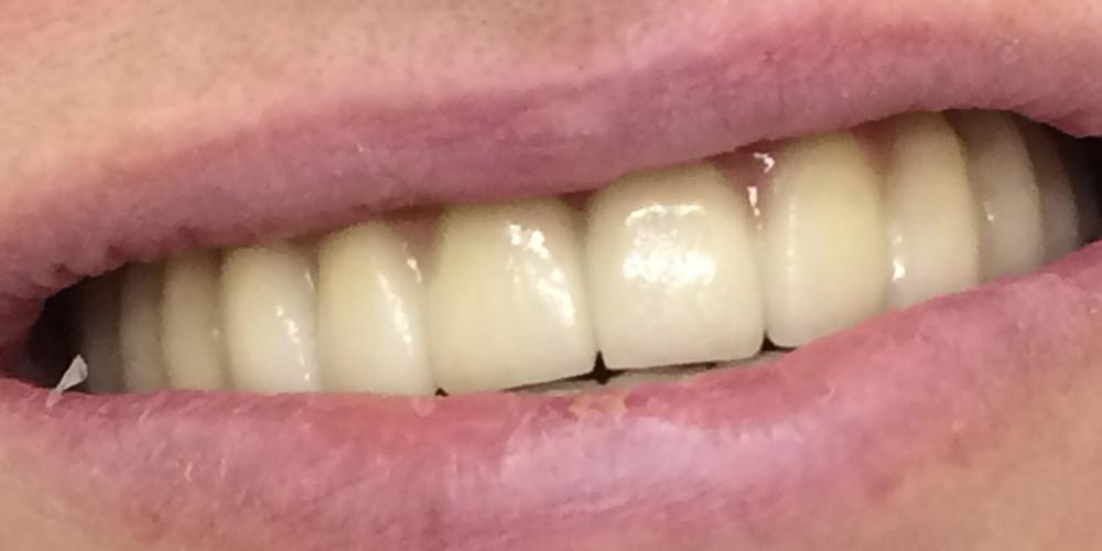 Дентальная имплантация зубов верхней челюсти - фото №2