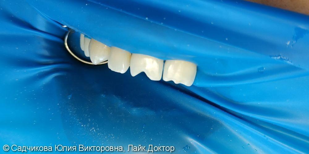 Реставрация фронтальной группы зубов, результат после лечения - фото №1