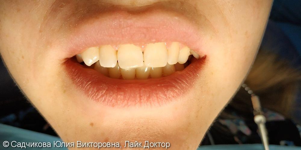Реставрация фронтальной группы зубов, результат после лечения - фото №2