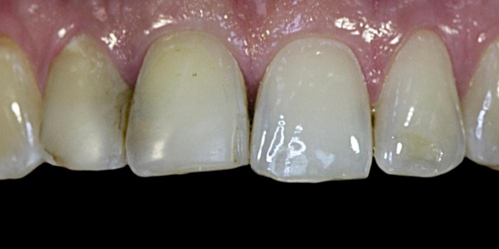 Жалобы на неудовлетворительную эстетику передних зубов - фото №1