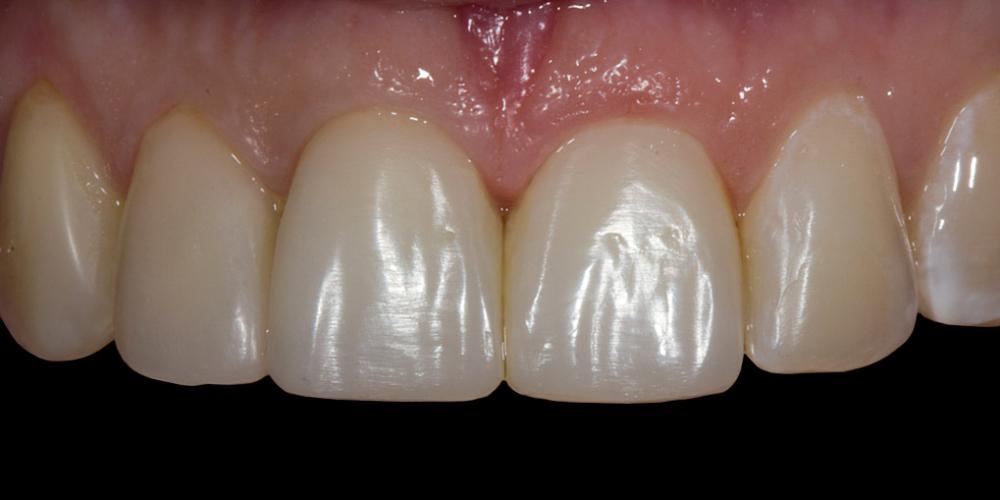 Жалобы на неудовлетворительную эстетику передних зубов - фото №2