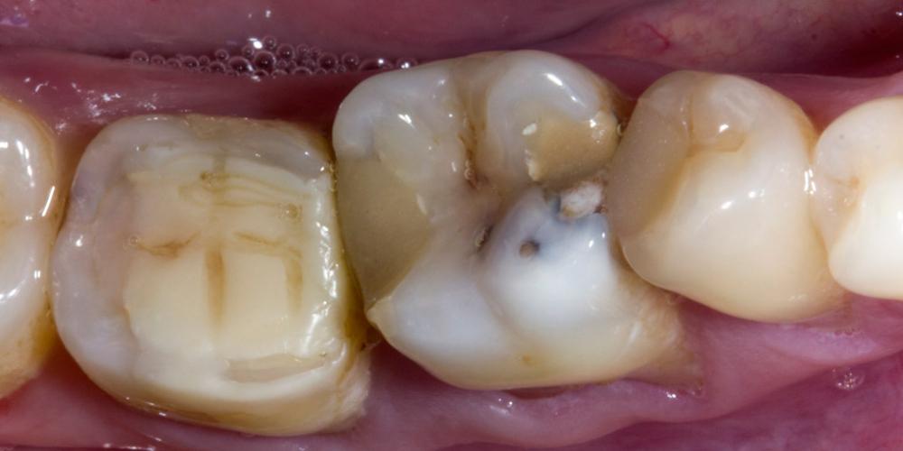 Обострение хронического фиброзного пульпита зуба 3.6 - фото №1
