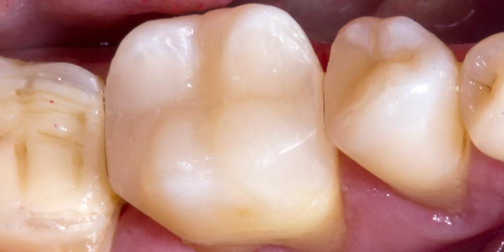 Обострение хронического фиброзного пульпита зуба 3.6 - фото №2