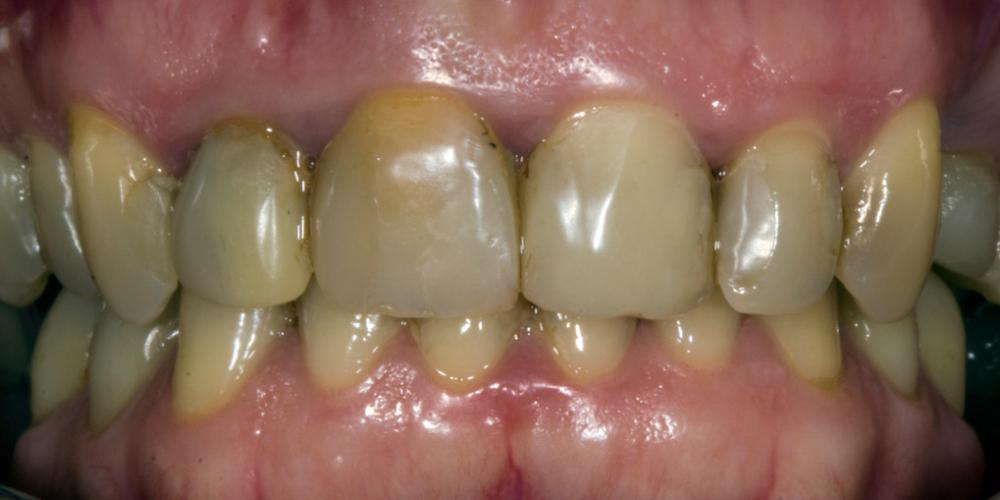 Результат прямой композитной реставрации зубов материалом Filtek Ultimate - фото №1