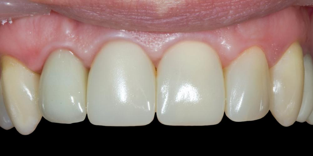 Результат прямой композитной реставрации зубов материалом Filtek Ultimate - фото №4