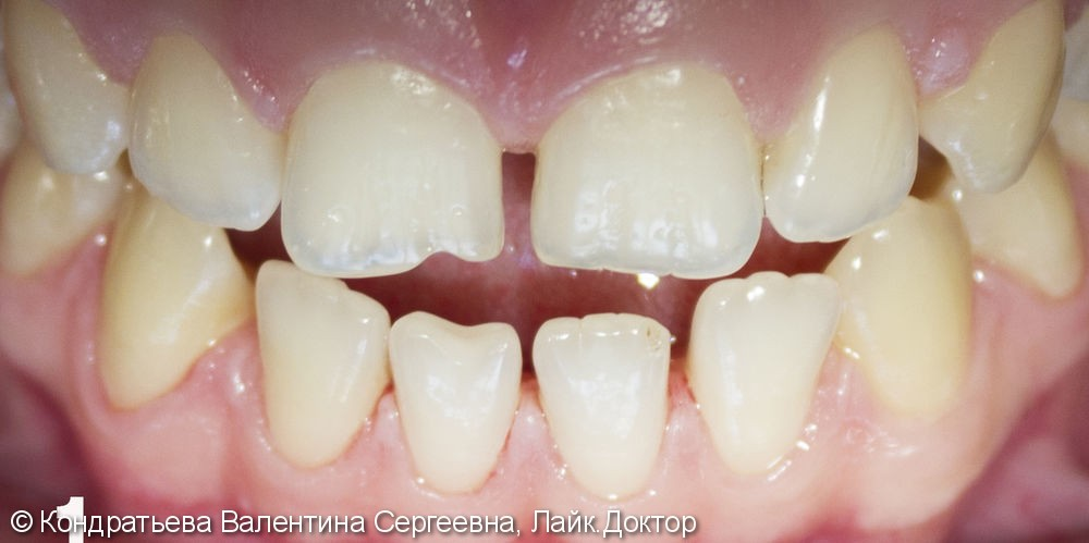Восстановление эстетики улыбки с помощью прямых реставраций без препарирования зубов - фото №1