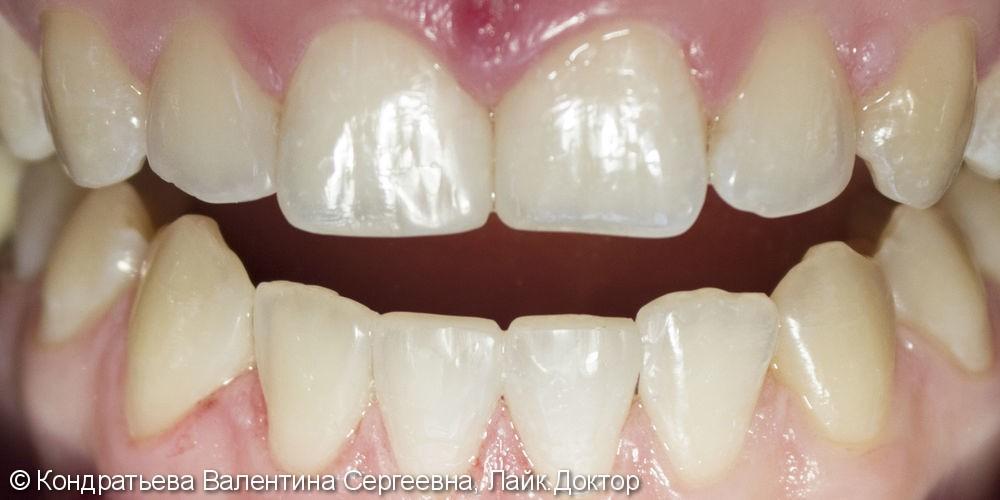 Восстановление эстетики улыбки с помощью прямых реставраций без препарирования зубов - фото №2