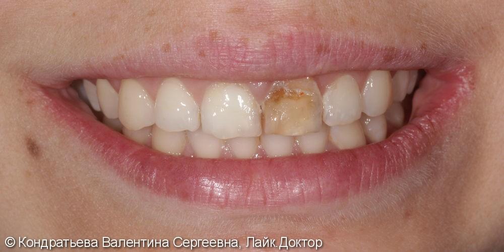 Реставрация передних зубов, результат после лечения - фото №1