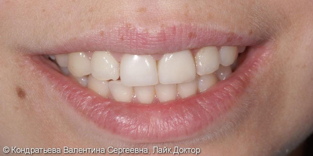Реставрация передних зубов, результат после лечения - фото №2