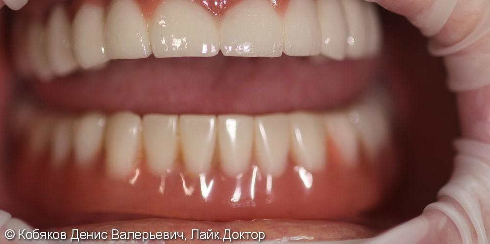 Протезирование с опорой на импланты, до и после - фото №3