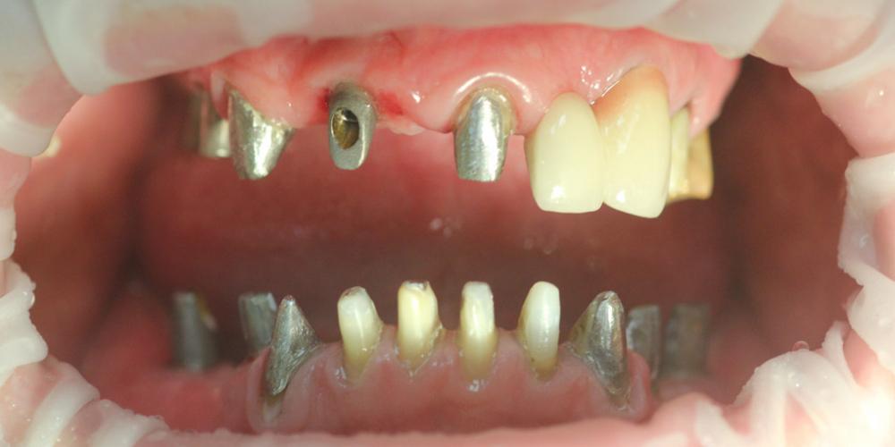 Комплексное восстановление жевательной и эстетической функции зубов - фото №1