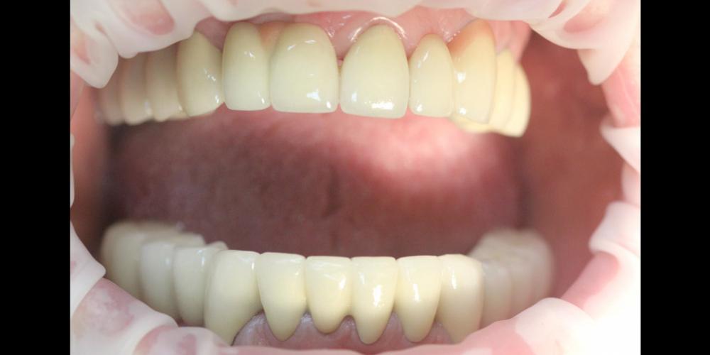 Комплексное восстановление жевательной и эстетической функции зубов - фото №2