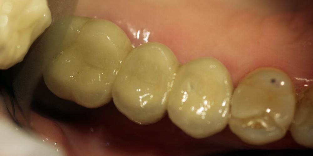 Восстановление зубного ряда с помощью двух имплантатов Dentium и трех металлокерамических коронок - фото №2