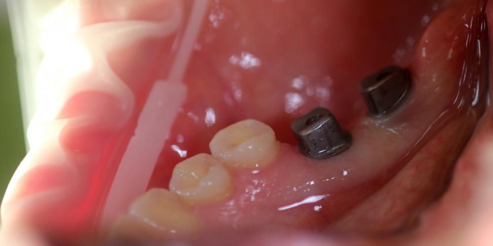 Восстановление зубного ряда с помощью имплантатов Ankylos и металлокерамических коронок - фото №1