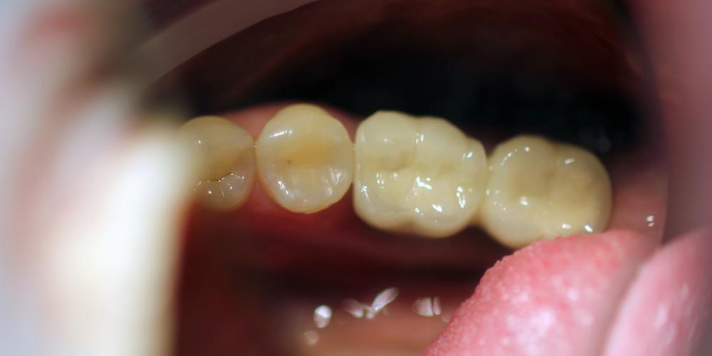 Восстановление зубного ряда с помощью имплантатов Ankylos и металлокерамических коронок - фото №2