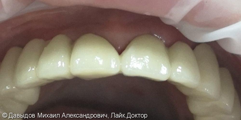 Реконструкция верхней челюсти, до и результат после - фото №2