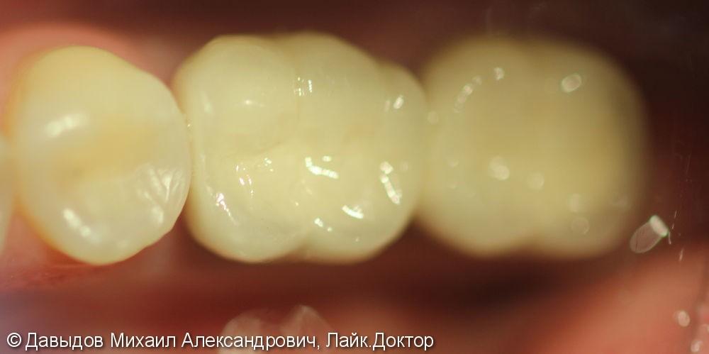 Протезирование на имплантах ANKYLOS с одновременной пластикой десны - фото №4