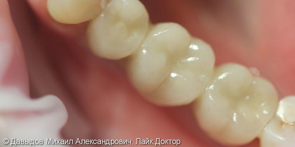 Протезирование трех зубов на двух имплантах, до и после - фото №3