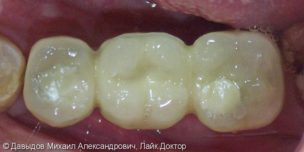 Протезирование зубов с опорой на импланты Mis, до и после - фото №4