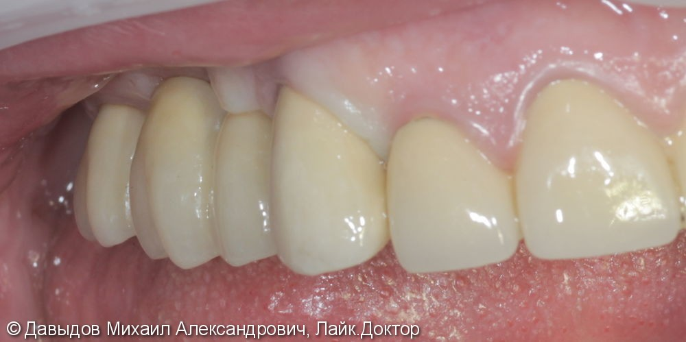 Протезирование на имплантах MIS - фото №3