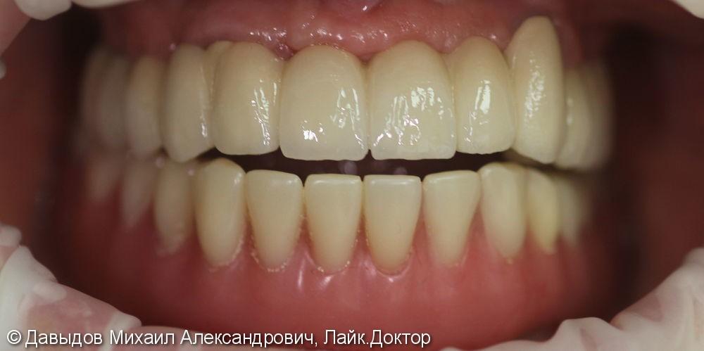 Гигиена на имплантах аппаратом Vector paro pro - фото №8