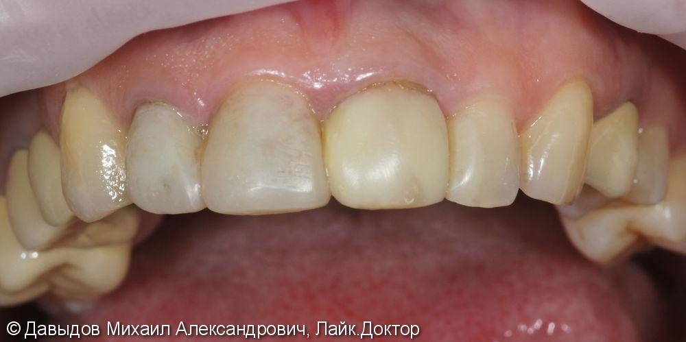 Коронки Е.МАХ на фронтальной группе зубов - фото №1