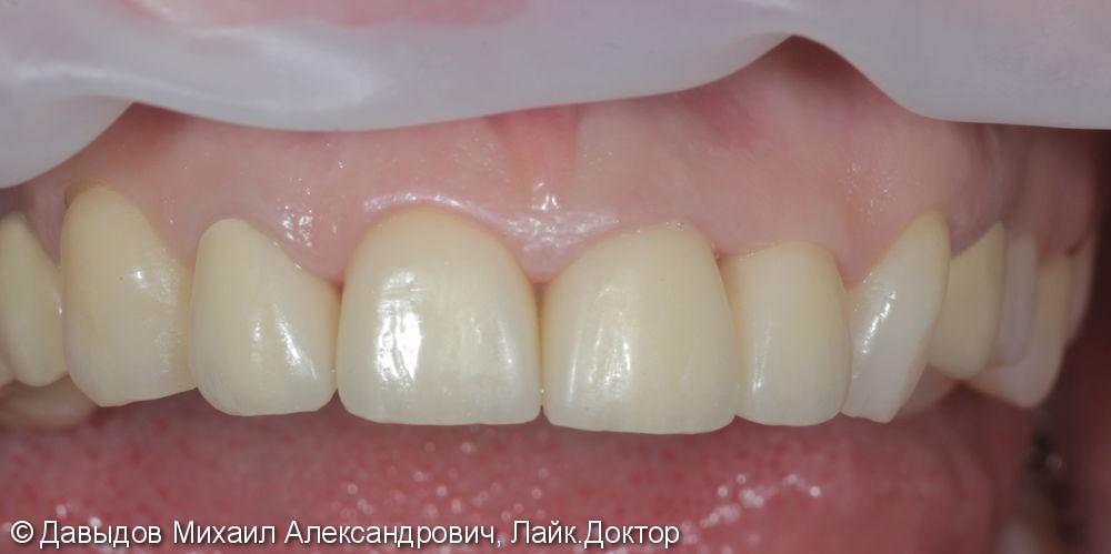 Коронки Е.МАХ на фронтальной группе зубов - фото №3