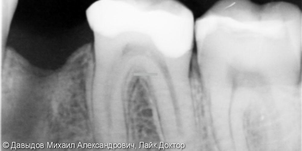 Имплантация зуба 36 - фото №1