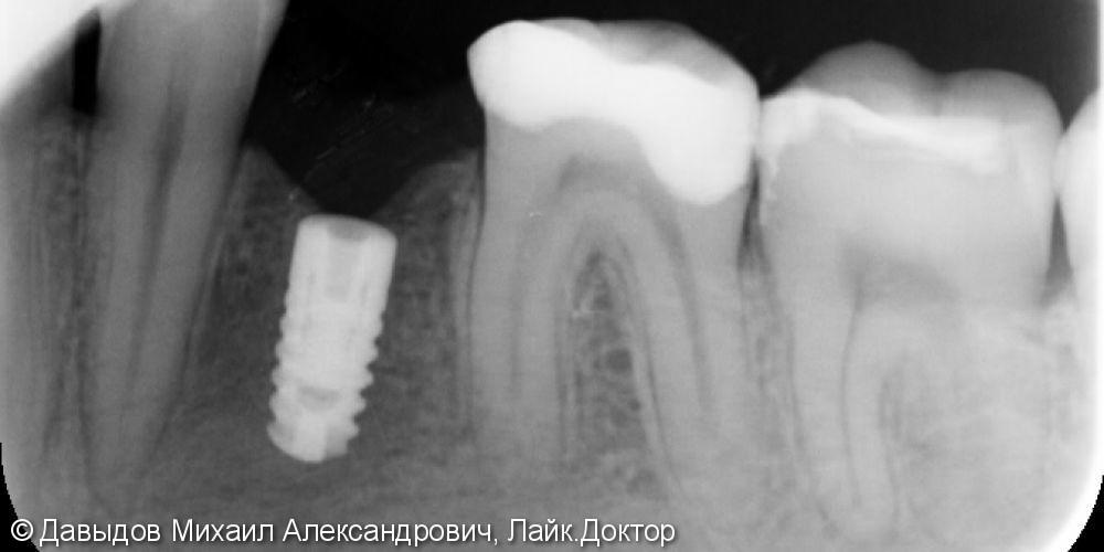 Имплантация зуба 36 - фото №3