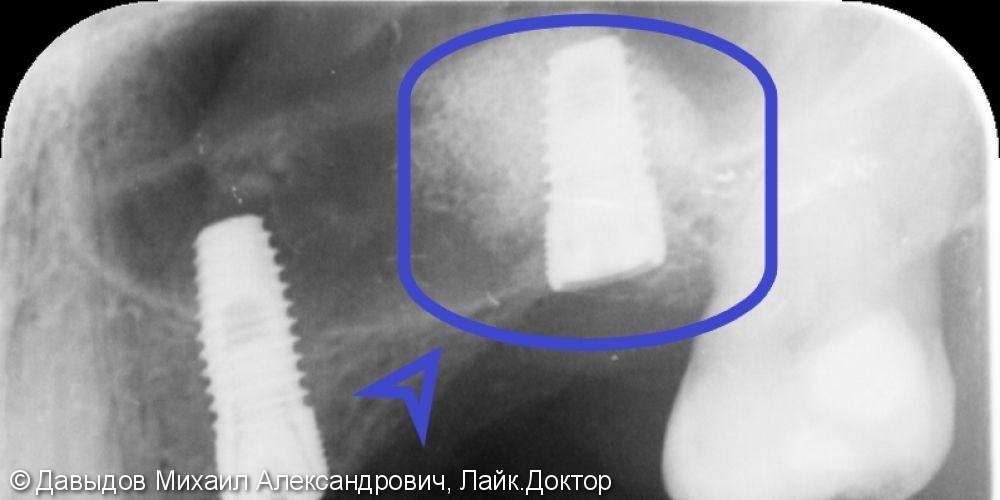 Закрытый синус-лифтинг с одномоментной имплантацией - фото №3