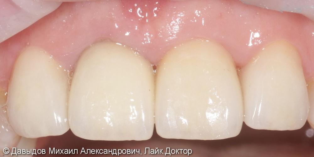 Бюджетное протезирование фронтальной группы зубов коронками из диоксида циркония - фото №3