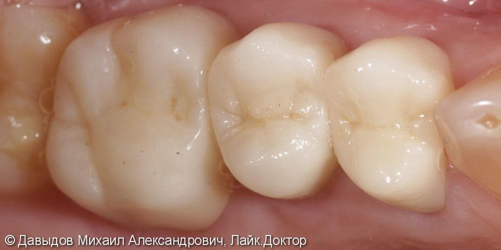 Протезирование жевательной группы зубов. - фото №3