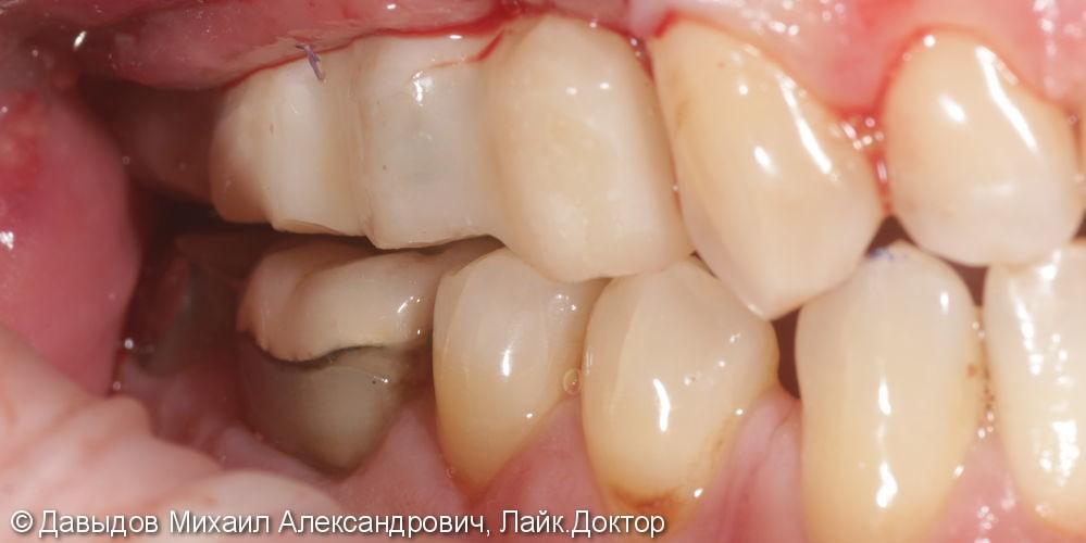 Одномоментная имплантация с немедленной нагрузкой - фото №7