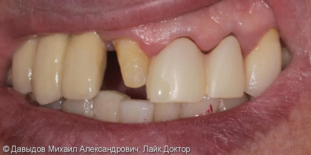 Протезирование фронтального участка верхней челюсти коронками из диоксида циркония - фото №1