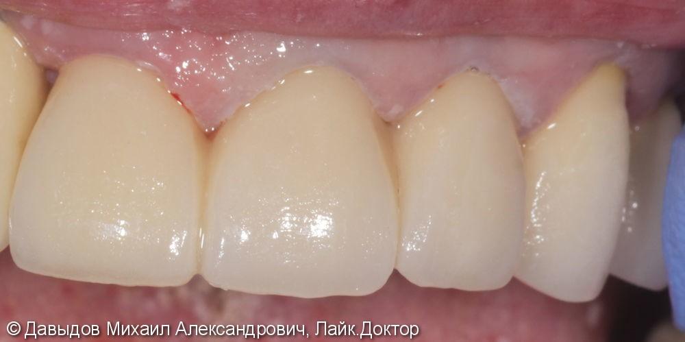 Протезирование фронтального участка верхней челюсти коронками из диоксида циркония - фото №3
