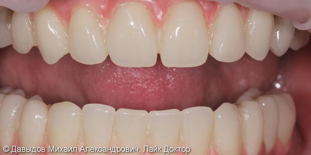 Тотальное протезирование на имплантах - фото №6