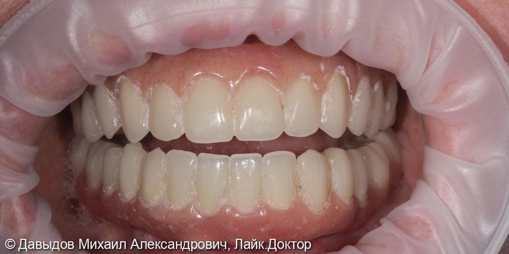 Функциональное протезирование зубов с использованием имплантатов - фото №9