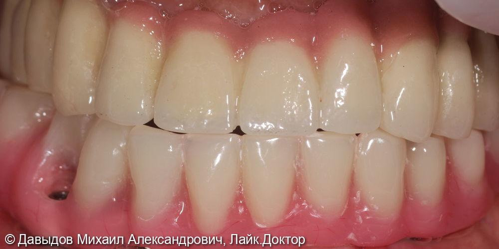 Протезирование зубов нижней челюсти иеталлоакриловым протезом на фрезерованной балке с уровня мультиюнитов на 6ти имплантах - фото №6
