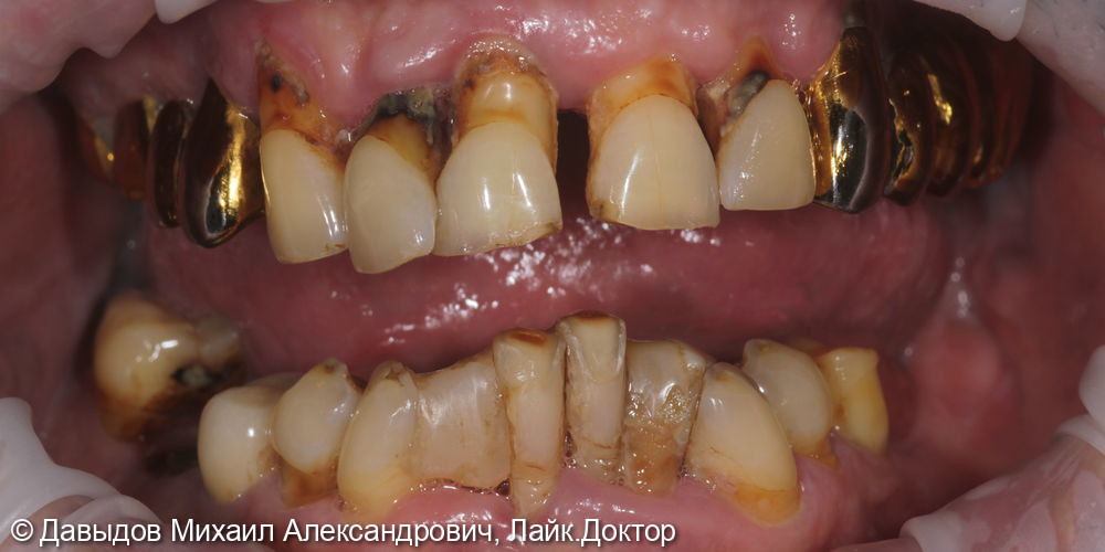 Функциональное протезирование зубов верхней и нижней челюсти с использование бюгельного протеза с замковобалочной фиксацией на имплантах и кламерного бюгельного протеза - фото №1