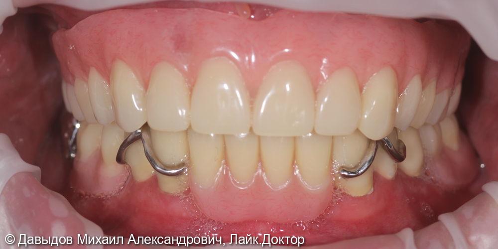 Функциональное протезирование зубов верхней и нижней челюсти с использование бюгельного протеза с замковобалочной фиксацией на имплантах и кламерного бюгельного протеза - фото №18