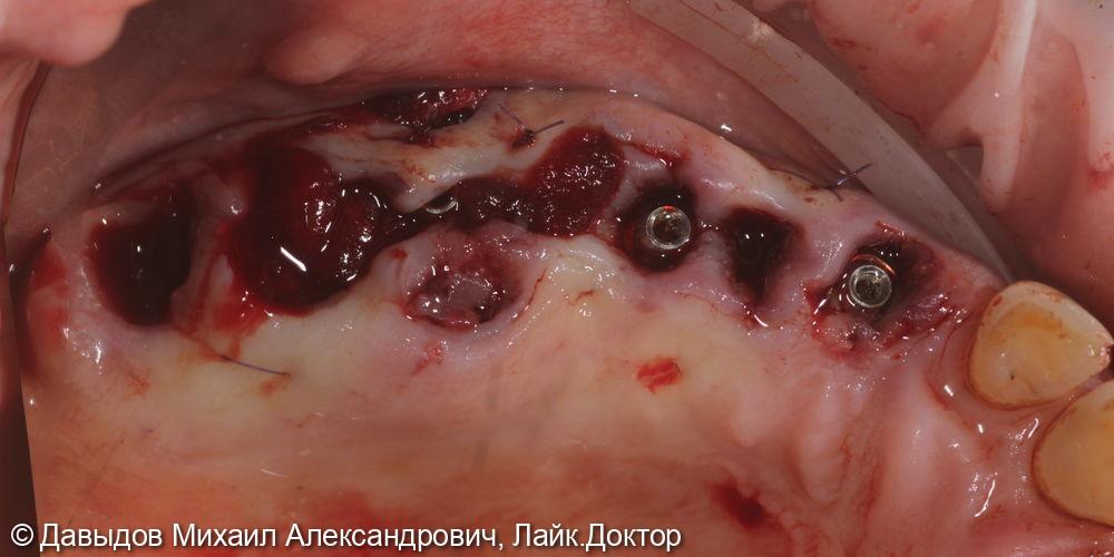 Зубы за один день. Одномоментная имплантация с немедленной нагрузкой временными коронками - фото №6