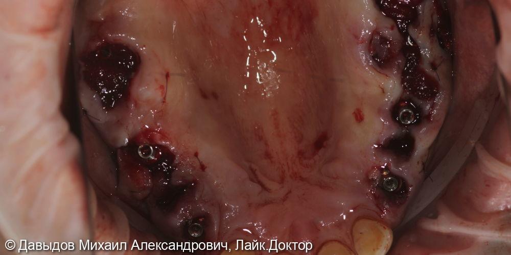 Зубы за один день. Одномоментная имплантация с немедленной нагрузкой временными коронками - фото №8