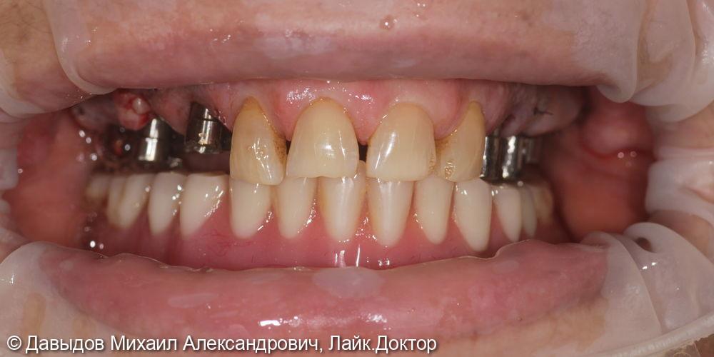 Зубы за один день. Одномоментная имплантация с немедленной нагрузкой временными коронками - фото №9