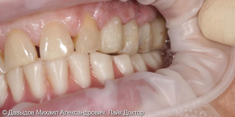 Зубы за один день. Одномоментная имплантация с немедленной нагрузкой временными коронками - фото №14
