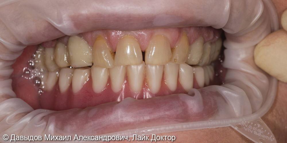 Зубы за один день. Одномоментная имплантация с немедленной нагрузкой временными коронками - фото №16