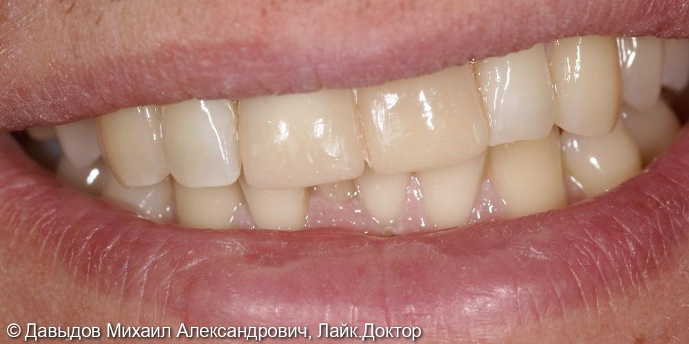 Одномоментная имплантация зуба 21. Техника корневого щита - фото №7